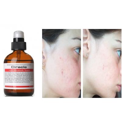 Тонер для проблемной кожи Ciracle Anti-blemish Toner